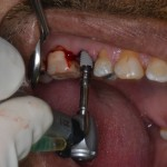 Implant is going in to the socket