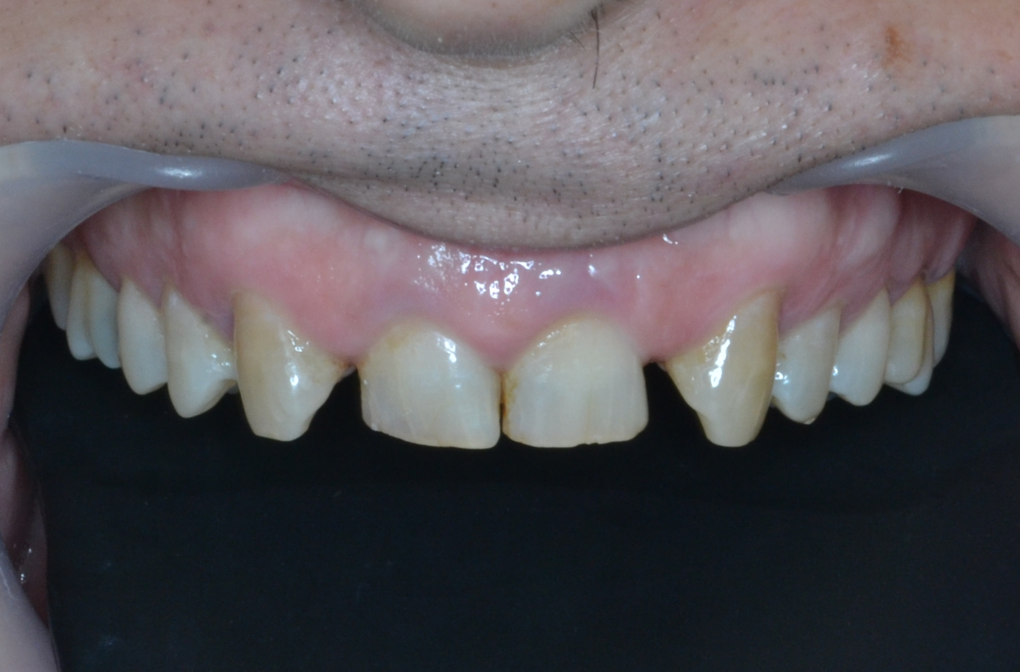 Front teeth looks dark and patient didnt like it. they also looks small in size.