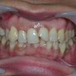 Broken incisor due to an accedent, tooth was naturally tilted mesial with overlapping with right central incisor.